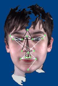 Autistic facial characteristics identified