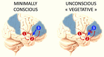 New test may help distinguish between vegetative and minimally conscious state
