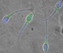 Sperm coat protein may be key to male infertility