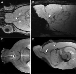 Scientists track neuronal stem cells using MRI