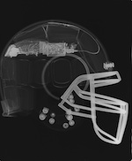 Breakthrough: Real-time data recorded on football player captures impact that caused broken neck