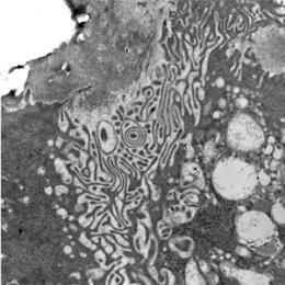 Scientists identify proteins that direct bone demolition