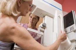 BreastScreen: Balancing benefits and harms