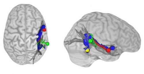 Have we met before? Direct connections between brain areas responsible for voice, face recognition