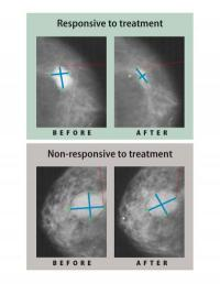 Estrogen-lowering drugs reduce mastectomy rates for breast cancer patients
