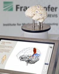 Fraunhofer MEVIS: New procedure to make brain surgery safer