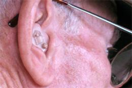 Government needs to listen up on hearing aids