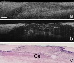 High-resolution imaging technology reveals cellular details of coronary arteries