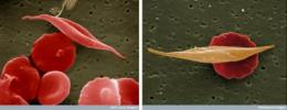 Mystery solved: How sickle hemoglobin protects against malaria
