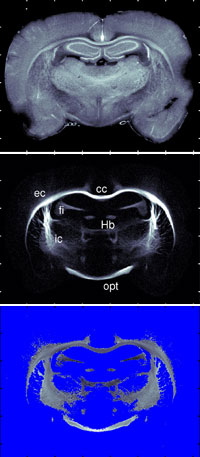 New X-ray method for understanding brain disorders better