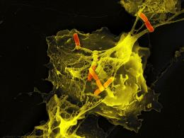 The tangled NETs of the immune system