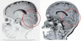 Tiny variation in 1 gene may have led to crucial changes in human brain