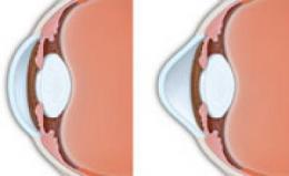 Vitamin B-based treatment for corneal disease may offer some patients a permanent solution