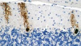 Glycogen accumulation in neurons causes brain damage and shortens the lives of flies and mice