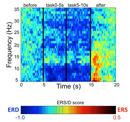Mu-rhythm in the brain: The neural mechanism of speech as an audio-vocal perception-action system