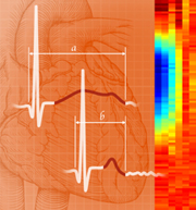 New drug shows promise for long QT syndrome
