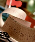 New guidelines say no to screening EKGs for low-risk patients