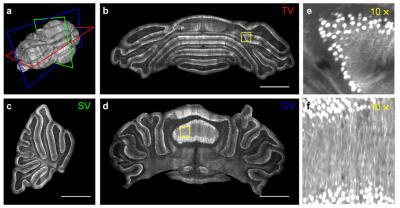 Novel microscopy method offers sharper view of brain's neural network