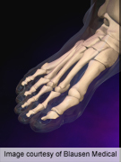 Prevalence of gout increases with increasing BMI