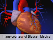 Stem cell study shows promising results against heart failure
