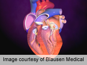 Study assesses impact of lesion severity on coronary event risk