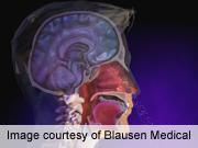 Study examines prevalence of local allergic rhinitis