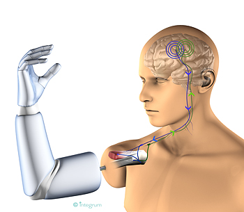 Thought-controlled prosthesis is changing the lives of amputees