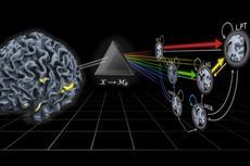 Brain network reveals disorders