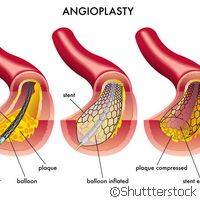 Researchers advocate better access to angioplasty treatment