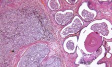 New drug has potential to treat broader range of cancers