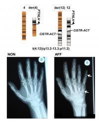 New findings on gene regulation and bone development
