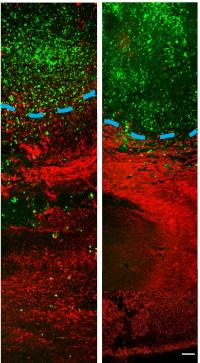 Novel compound halts tumor spread, improves brain cancer treatment in animal studies