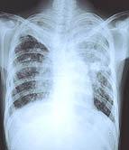 Prevalence of TB, hepatitis C, HIV high among homeless