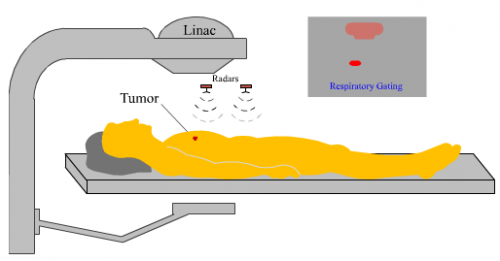 New radar better treats mobile tumors