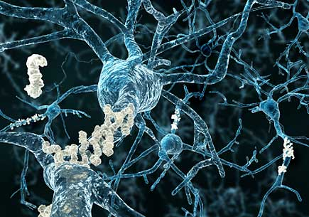 Understanding Alzheimer's: Study gives insights into how disease kills brain cells