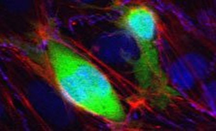 Targeting protein could prevent spread of cancer cells