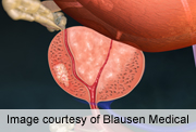 Abiraterone benefits chemo-naive with advanced prostate CA