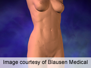 ACOG: abdominoplasty plus hysterectomy deemed safe