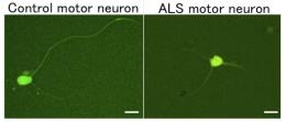 A drug-screening platform for ALS