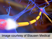 AES: brain's stress response differs among epilepsy patients