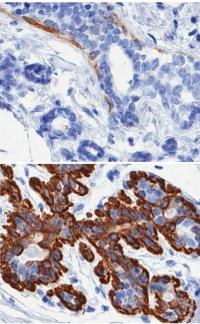Aging and breast cancer: Researchers uncover cellular basis for age-related breast cancer vulnerability