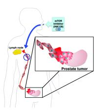Analysis of mTOR shows how the protein works, how new generation of drugs may defeat it