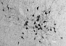 A new type of nerve cell found in the brain