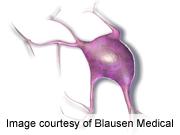 ASCO: trametinib improves survival in metastatic melanoma