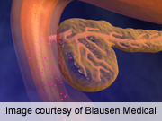 ASMBS: bariatric surgery helps resolve diabetic nephropathy