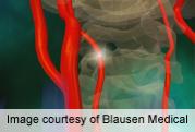 Aspirin resistance ups severity in acute ischemic stroke