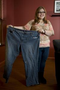 Bariatric surgery in adolescents improves obesity-related diseases within first 2 years