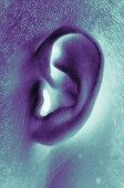 Basal cell carcinoma on ear significantly more aggressive