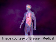 Belimumab deemed safe for long-Term lupus treatment