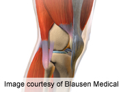 BMI, post-exercise knee laxity change tied to OA progression